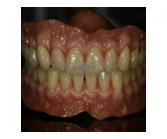 دندانسازی ساخت دندان مصنوعی با ضمانت در یک هفته
